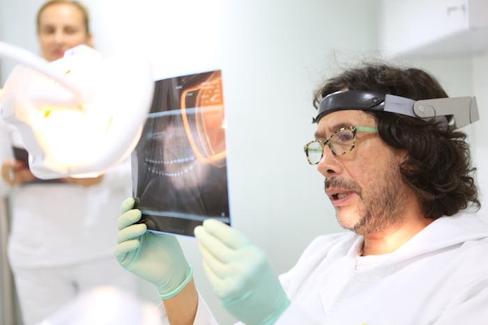 ¿Cómo saber si necesito una corona dental?